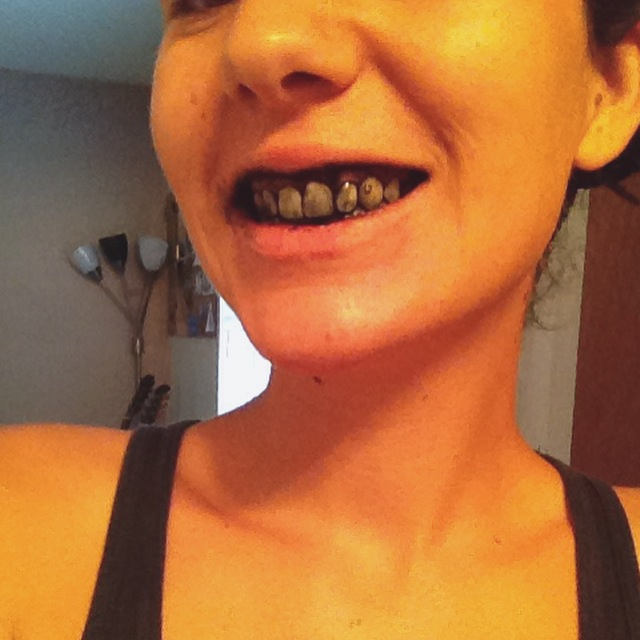 Ditch the chemical whitening strips that make you foam at the mouth and use activated charcoal to whiten your teeth naturally. It's easy and effective!